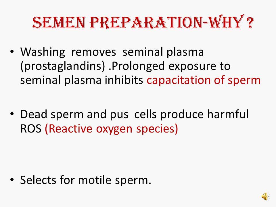 SEMEN PREPARATION for IUI Dr Aruna Saxena MD(Obs& Gynae),ARTCE (NUS, Singapore) Director,Lifecare IVF Pvt Ltd