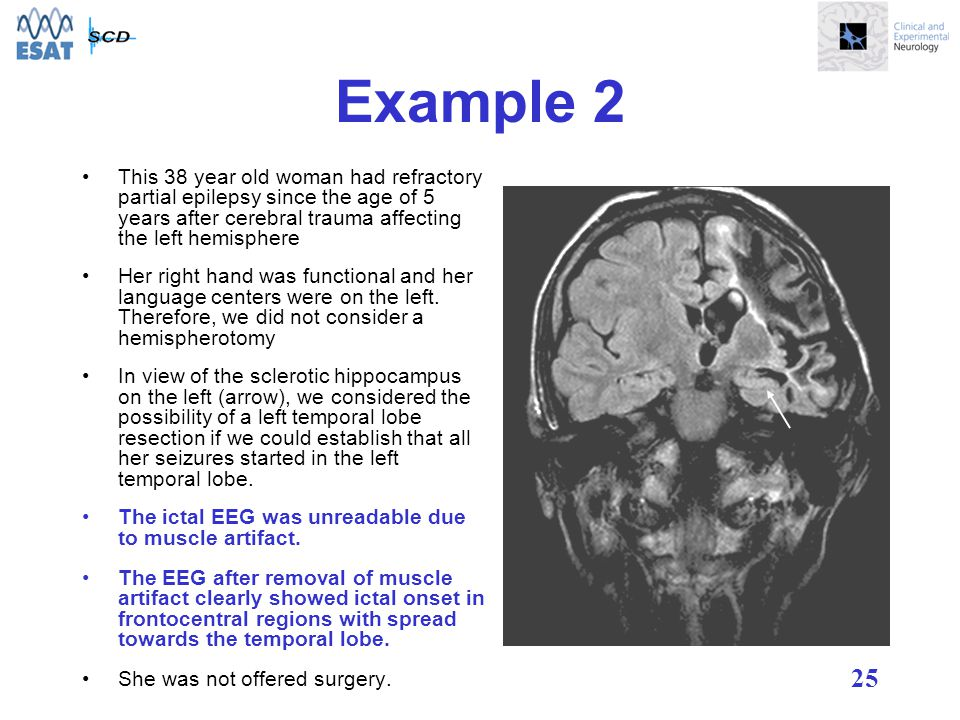 25 Example 2 This 38 year old woman had refractory partial epilepsy since the age of 5 years after cerebral trauma affecting the left hemisphere Her right hand was functional and her language centers were on the left.