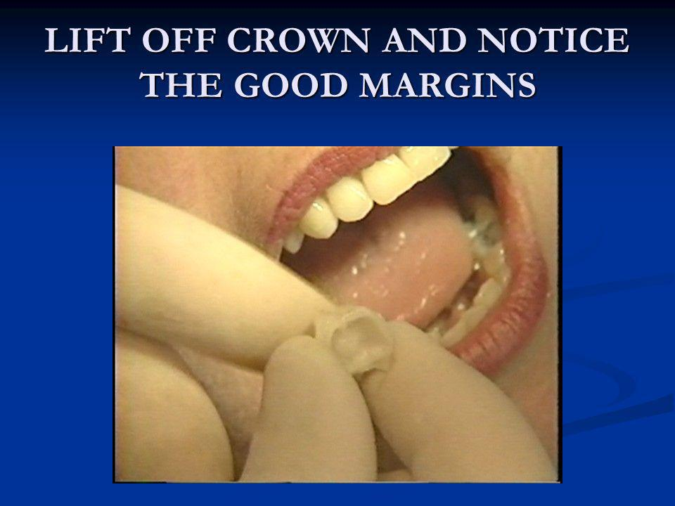LIFT OFF CROWN AND NOTICE THE GOOD MARGINS