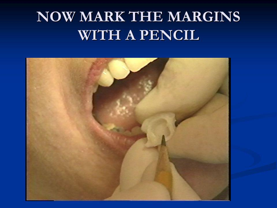 NOW MARK THE MARGINS WITH A PENCIL