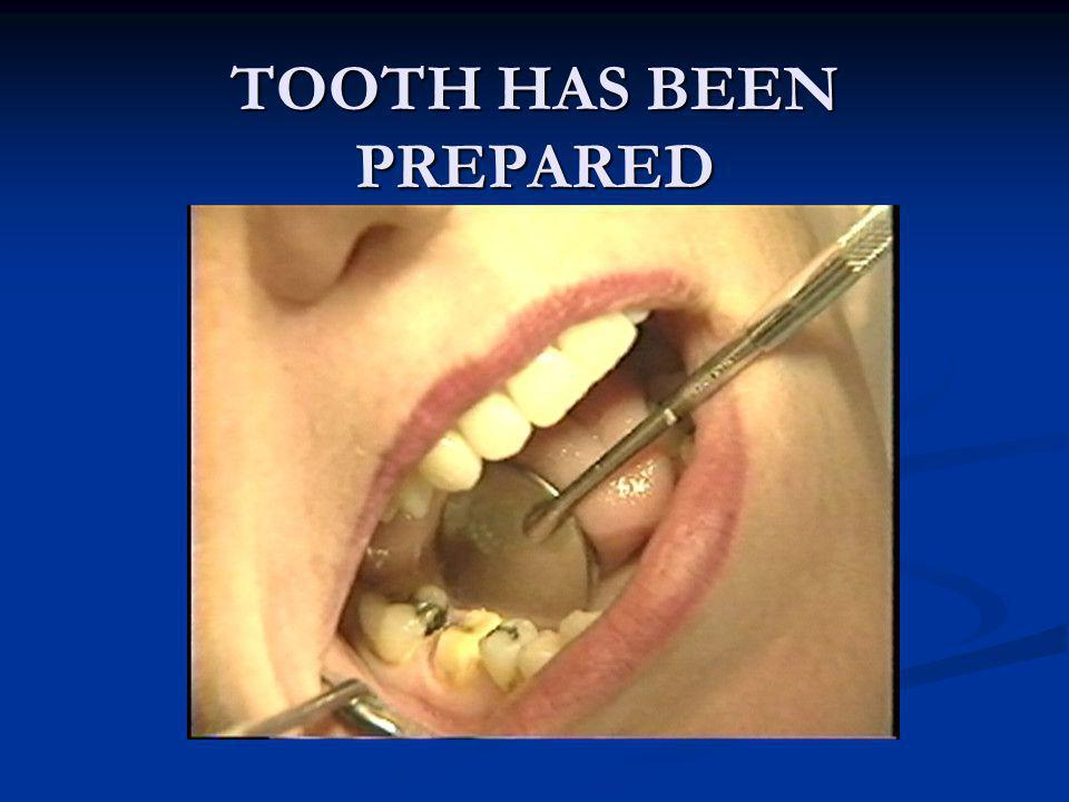 TOOTH HAS BEEN PREPARED