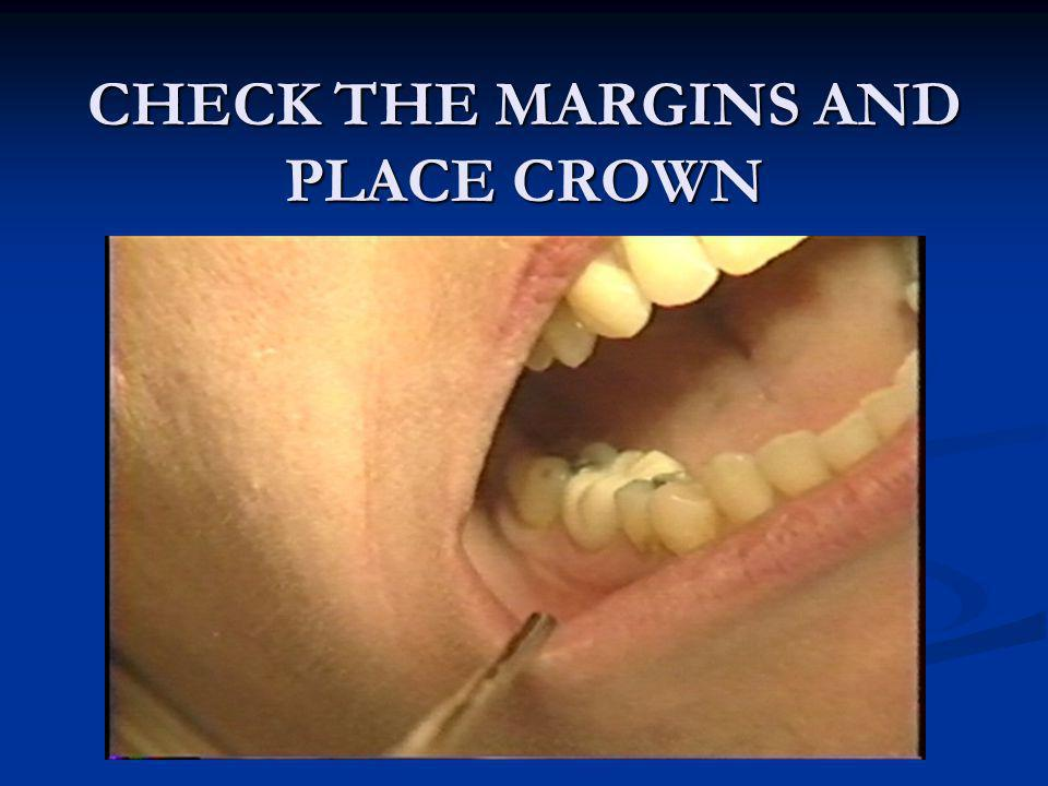 CHECK THE MARGINS AND PLACE CROWN