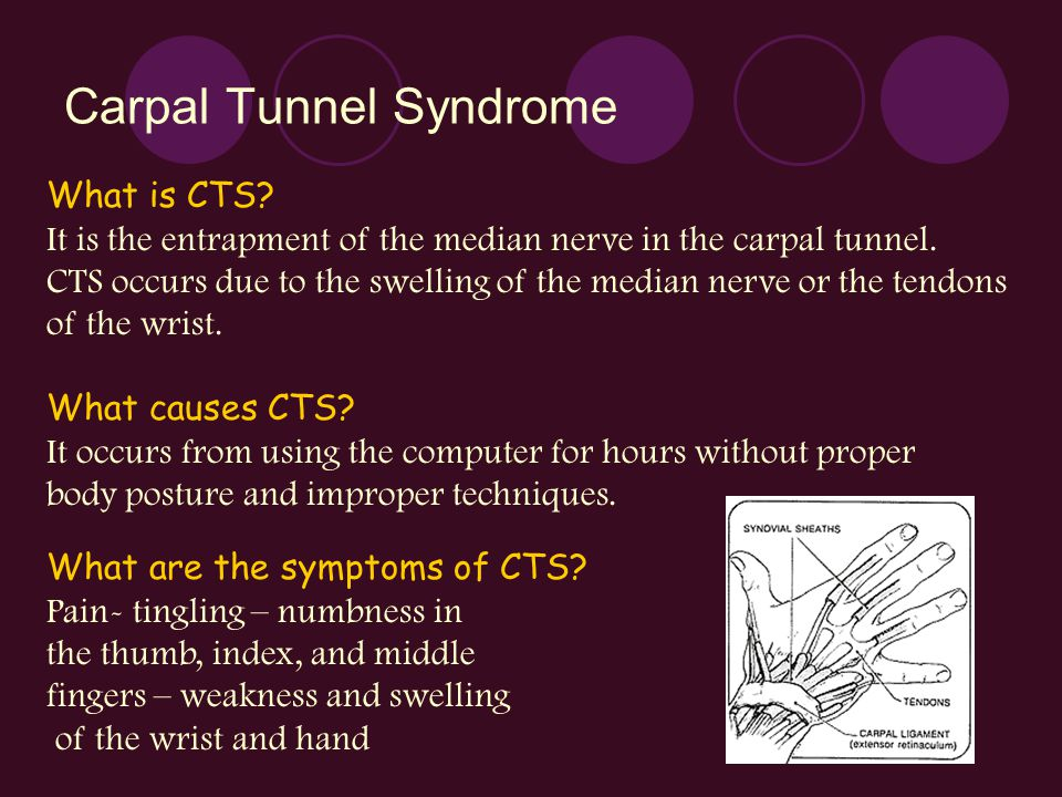 Carpal Tunnel Syndrome What is CTS? It is the entrapment of the median nerve in the carpal tunnel. CTS occurs due to the swelling of the median nerve