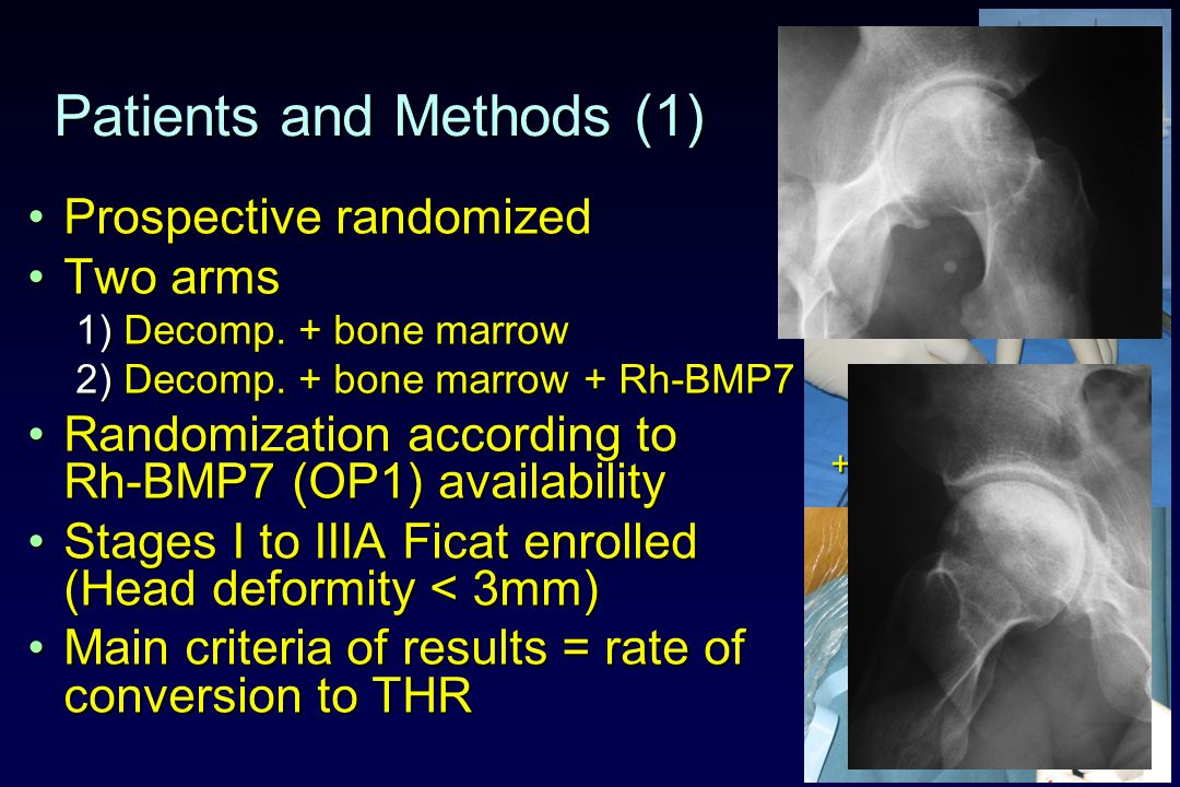 Patients and Methods (1) Prospective randomizedProspective randomized Two armsTwo arms 1) Decomp.