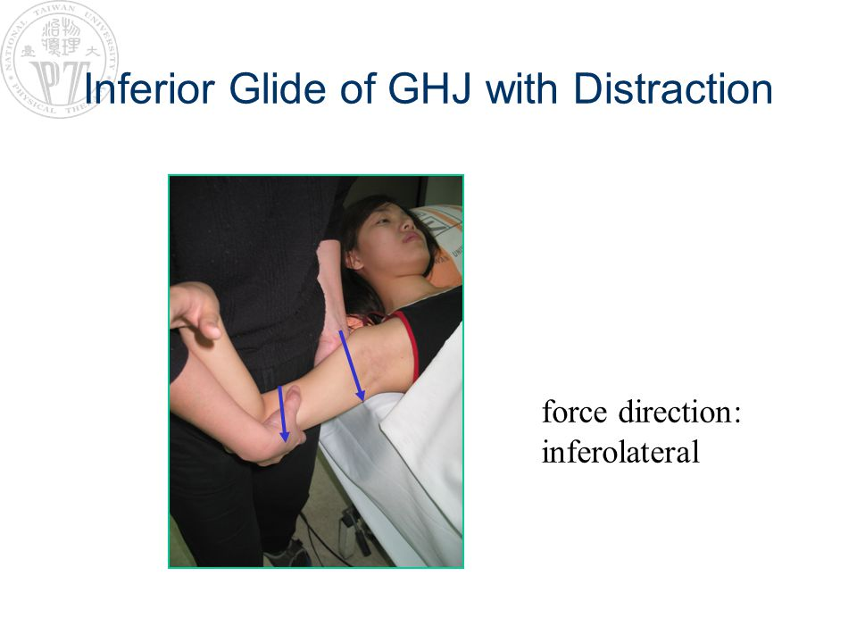 Inferior Glide of GHJ with Distraction force direction: inferolateral