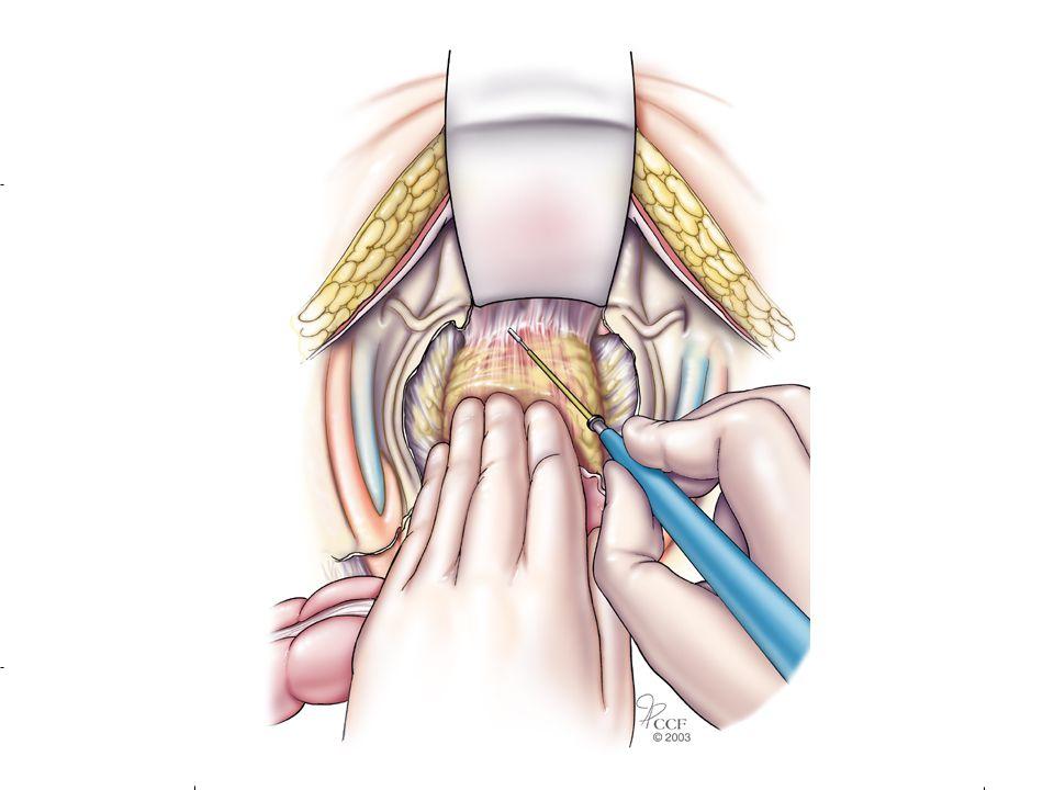 Anastomosis