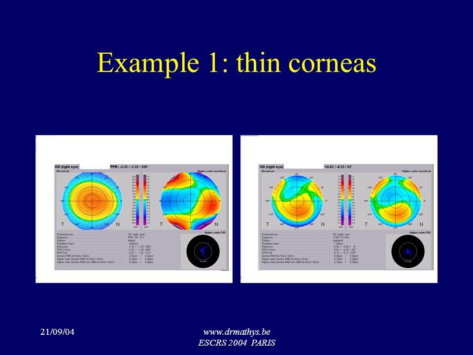 21/09/04www.drmathys.be ESCRS 2004 PARIS Example 1: thin corneas