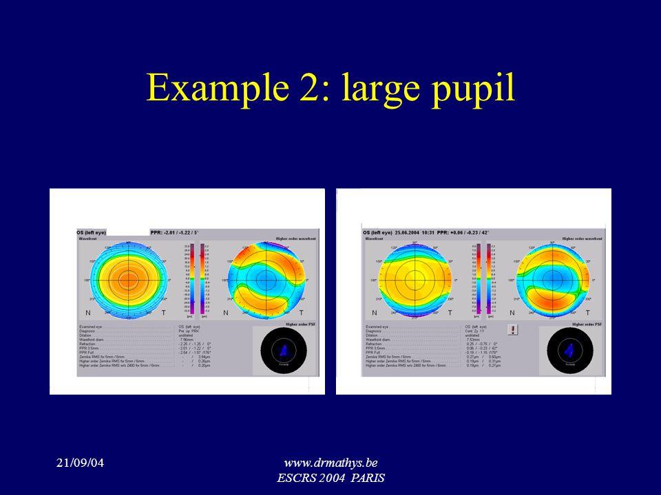 21/09/04www.drmathys.be ESCRS 2004 PARIS Example 2: large pupil