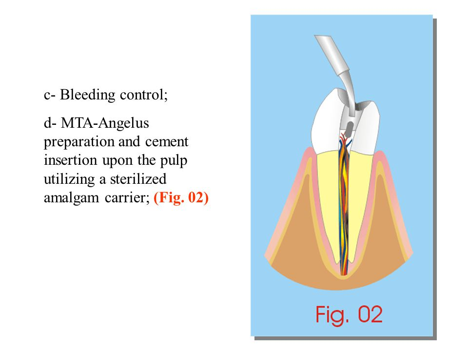 c- Bleeding control; d- MTA-Angelus preparation and cement insertion upon the pulp utilizing a sterilized amalgam carrier; (Fig. 02)