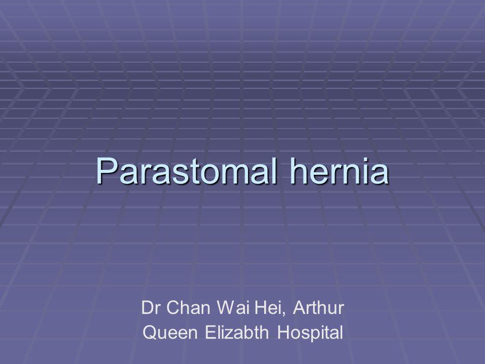 Parastomal hernia Dr Chan Wai Hei, Arthur Queen Elizabth Hospital