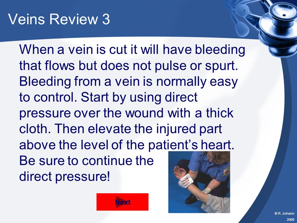 © R. Johann 2009 Veins Review 2 When a vein is cut it will have bleeding that flows but does not pulse or spurt. Bleeding from a vein is normally easy