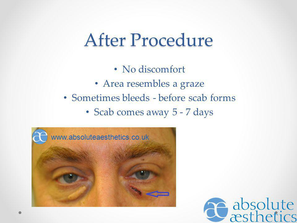 After Procedure No discomfort Area resembles a graze Sometimes bleeds - before scab forms Scab comes away 5 - 7 days www.absoluteaesthetics.co.uk
