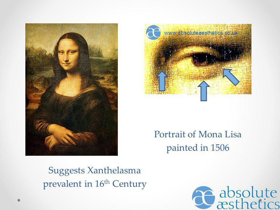 Portrait of Mona Lisa painted in 1506 Suggests Xanthelasma prevalent in 16 th Century www.absoluteaesthetics.co.uk