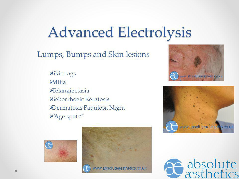 Advanced Electrolysis Lumps, Bumps and Skin lesions Skin tags Milia Telangiectasia Seborrhoeic Keratosis Dermatosis Papulosa Nigra Age spots www.absol