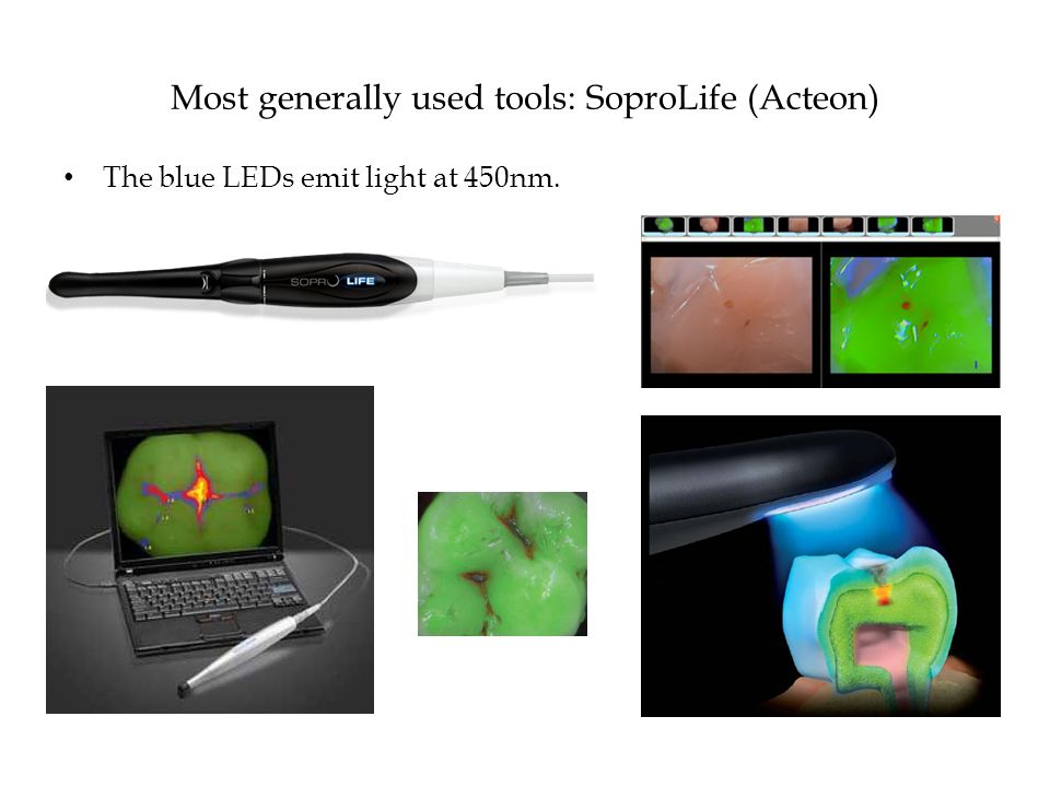Most generally used tools: SoproLife (Acteon) The blue LEDs emit light at 450nm.