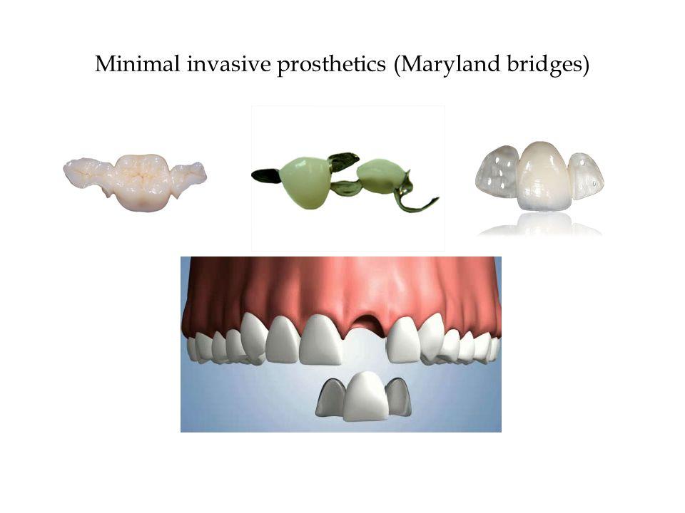 Minimal invasive prosthetics (Maryland bridges)