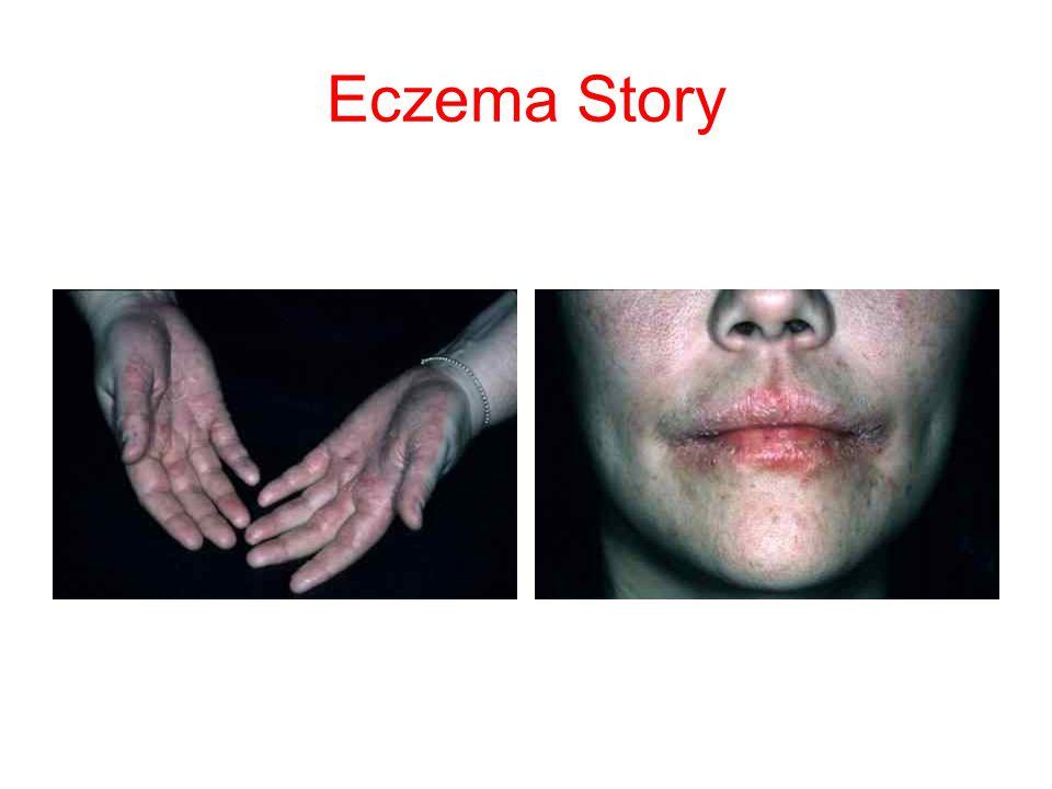 Eczema Story