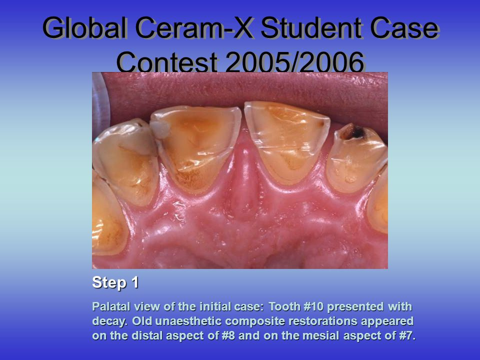 Global Ceram-X Student Case Contest 2005/2006 Palatal view of the initial case: Tooth #10 presented with decay. Old unaesthetic composite restorations