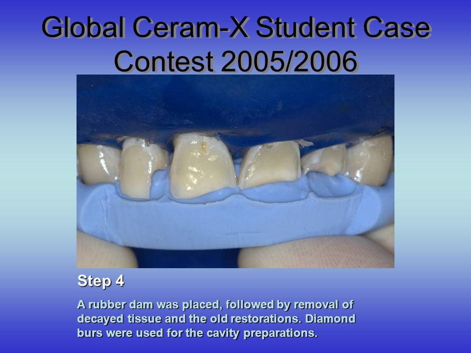 Global Ceram-X Student Case Contest 2005/2006 A rubber dam was placed, followed by removal of decayed tissue and the old restorations. Diamond burs we