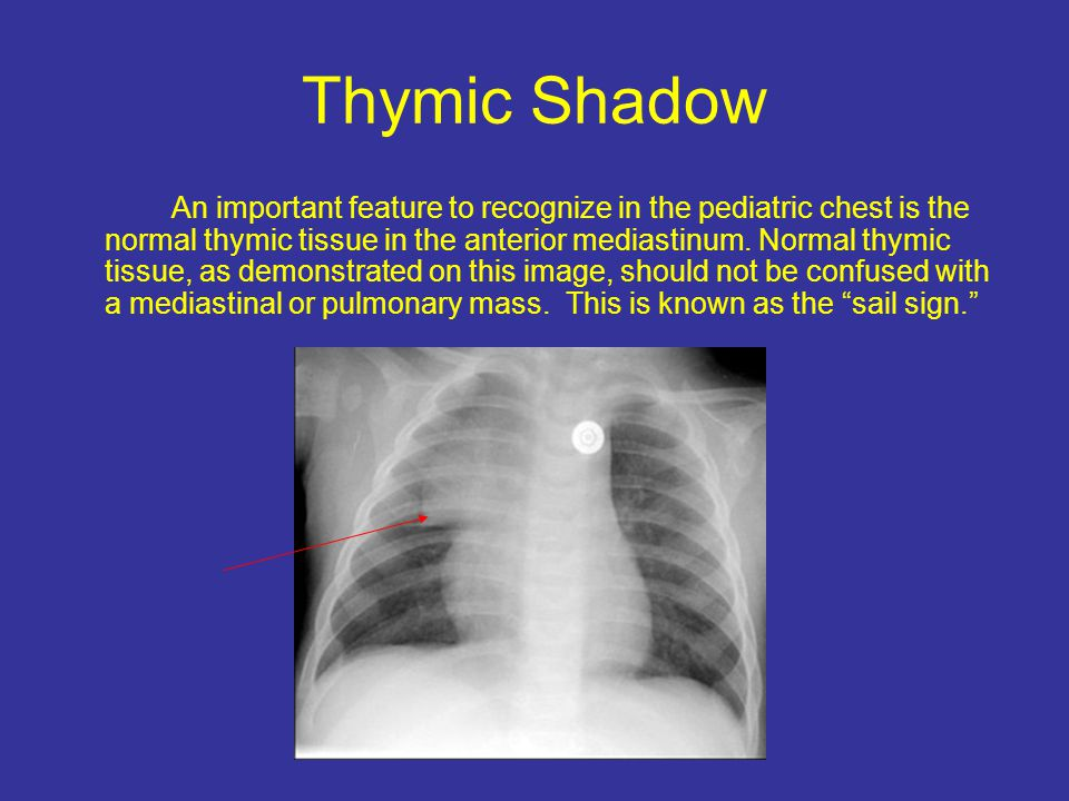 Thymic Shadow An important feature to recognize in the pediatric chest is the normal thymic tissue in the anterior mediastinum.