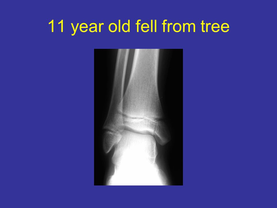 11 year old fell from tree