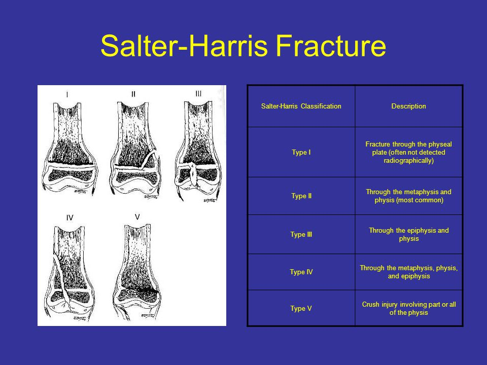 Salter-Harris Fracture Salter-Harris ClassificationDescription Type I Fracture through the physeal plate (often not detected radiographically) Type II Through the metaphysis and physis (most common) Type III Through the epiphysis and physis Type IV Through the metaphysis, physis, and epiphysis Type V Crush injury involving part or all of the physis