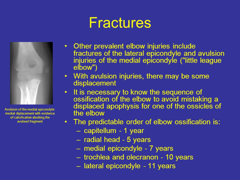 Fractures Other prevalent elbow injuries include fractures of the lateral epicondyle and avulsion injuries of the medial epicondyle ( little league elbow ) With avulsion injuries, there may be some displacement It is necessary to know the sequence of ossification of the elbow to avoid mistaking a displaced apophysis for one of the ossicles of the elbow The predictable order of elbow ossification is: –capitellum - 1 year –radial head - 5 years –medial epicondyle - 7 years –trochlea and olecranon - 10 years –lateral epicondyle - 11 years Avulsion of the medial epicondyle: medial diplacement with evidence of calcification abutting the avulsed fragment