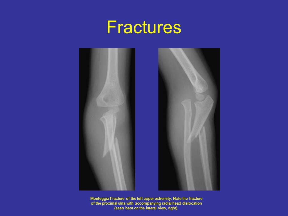 Fractures Monteggia Fracture of the left upper extremity.