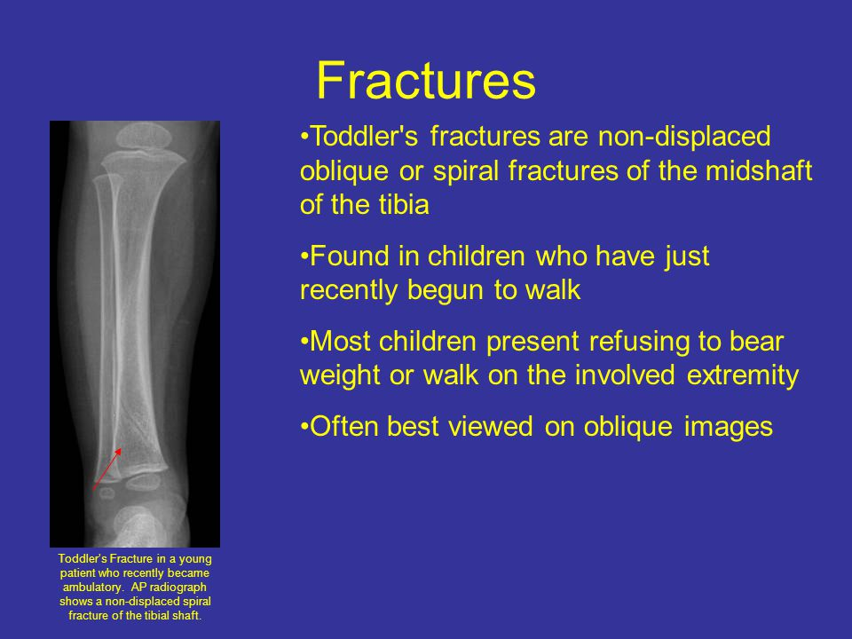 Fractures Toddlers Fracture in a young patient who recently became ambulatory.