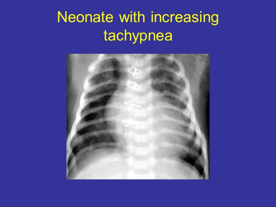 Neonate with increasing tachypnea