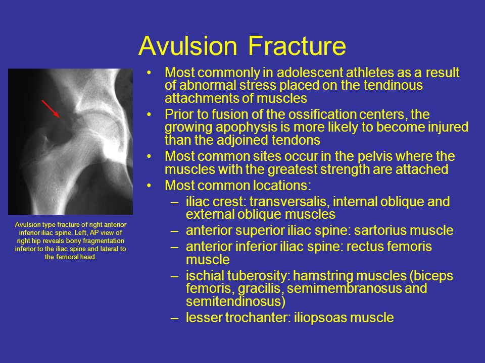 Avulsion Fracture Most commonly in adolescent athletes as a result of abnormal stress placed on the tendinous attachments of muscles Prior to fusion of the ossification centers, the growing apophysis is more likely to become injured than the adjoined tendons Most common sites occur in the pelvis where the muscles with the greatest strength are attached Most common locations: –iliac crest: transversalis, internal oblique and external oblique muscles –anterior superior iliac spine: sartorius muscle –anterior inferior iliac spine: rectus femoris muscle –ischial tuberosity: hamstring muscles (biceps femoris, gracilis, semimembranosus and semitendinosus) –lesser trochanter: iliopsoas muscle Avulsion type fracture of right anterior inferior iliac spine.
