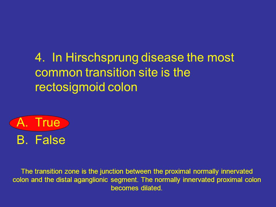 4. In Hirschsprung disease the most common transition site is the rectosigmoid colon A.True B.False The transition zone is the junction between the pr