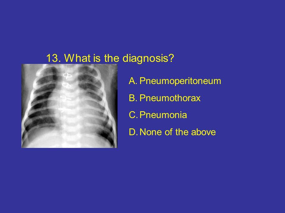 13. What is the diagnosis? A.Pneumoperitoneum B.Pneumothorax C.Pneumonia D.None of the above