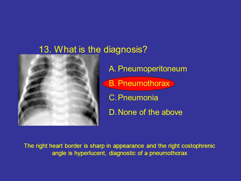 13.What is the diagnosis.