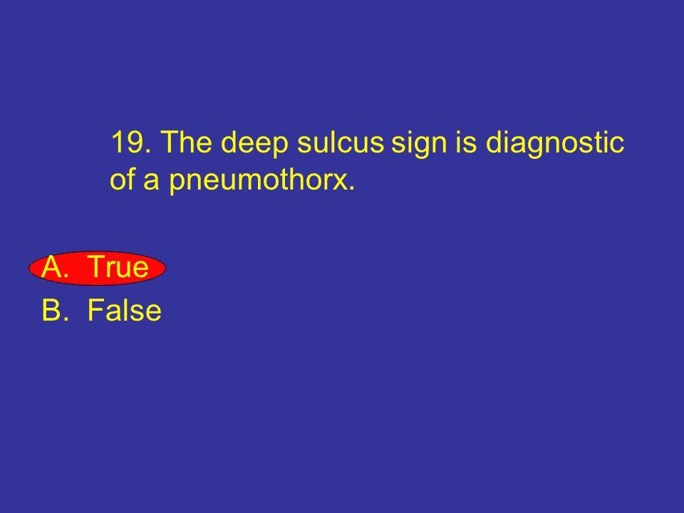 19. The deep sulcus sign is diagnostic of a pneumothorx. A.True B.False