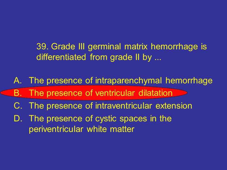 39.Grade III germinal matrix hemorrhage is differentiated from grade II by...