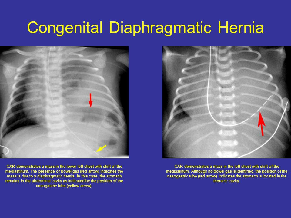 Congenital Diaphragmatic Hernia CXR demonstrates a mass in the lower left chest with shift of the mediastinum.