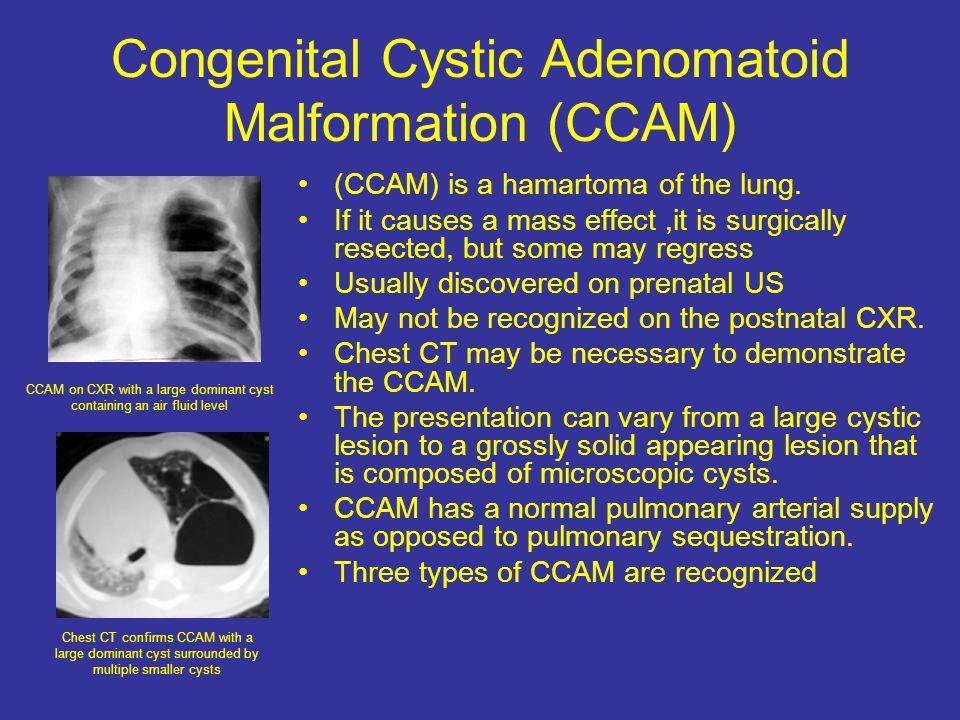 Congenital Cystic Adenomatoid Malformation (CCAM) (CCAM) is a hamartoma of the lung.