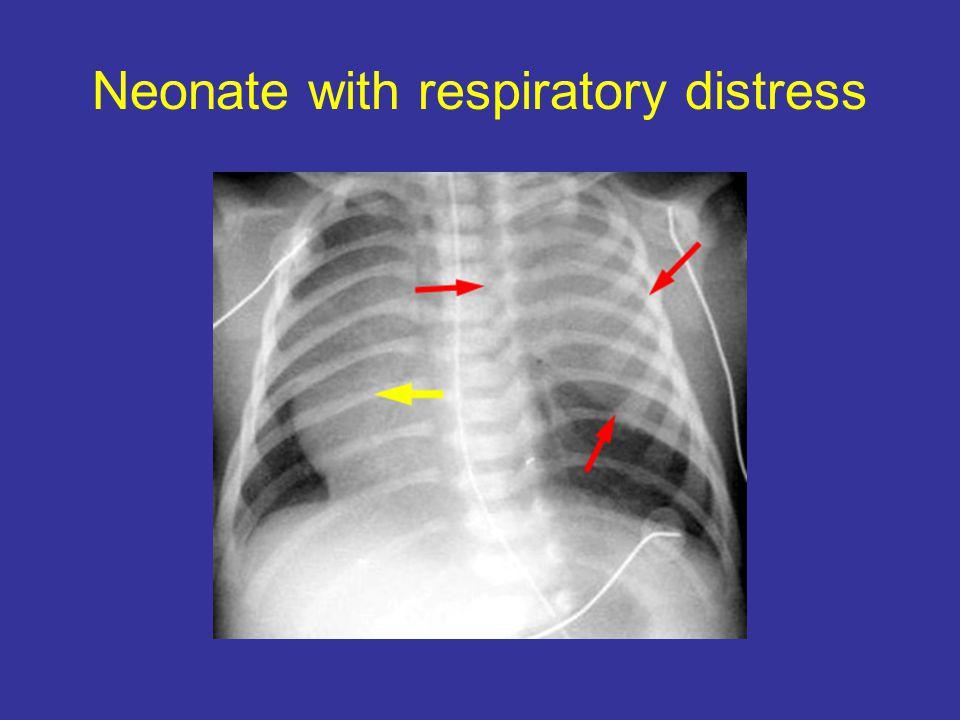 Neonate with respiratory distress