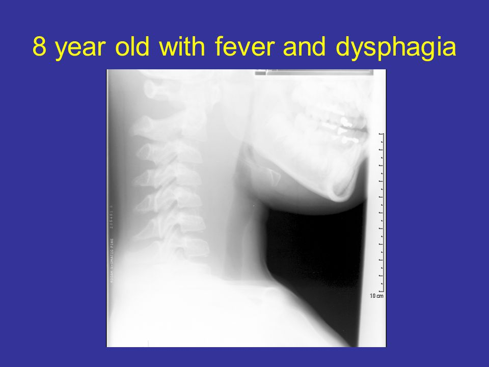 8 year old with fever and dysphagia