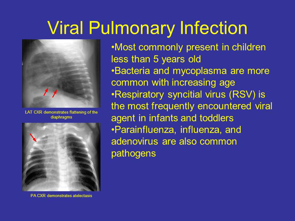 Viral Pulmonary Infection LAT CXR demonstrates flattening of the diaphragms PA CXR demonstrates atelectasis Most commonly present in children less than 5 years old Bacteria and mycoplasma are more common with increasing age Respiratory syncitial virus (RSV) is the most frequently encountered viral agent in infants and toddlers Parainfluenza, influenza, and adenovirus are also common pathogens
