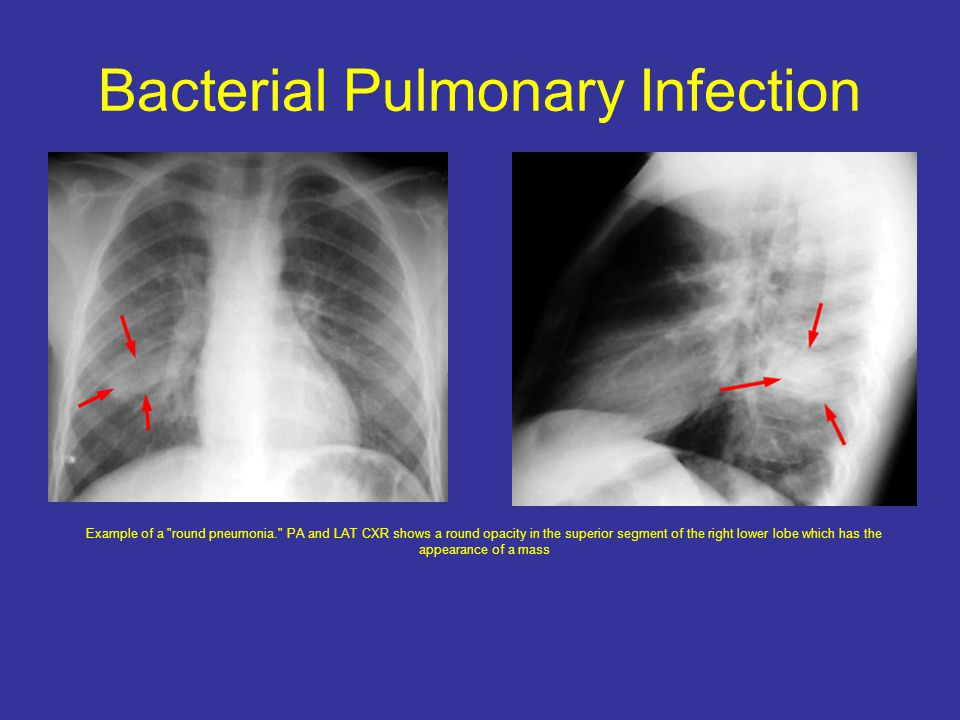 Bacterial Pulmonary Infection Example of a round pneumonia. PA and LAT CXR shows a round opacity in the superior segment of the right lower lobe which has the appearance of a mass