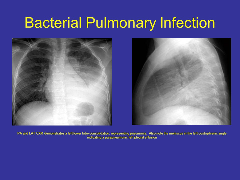 Bacterial Pulmonary Infection PA and LAT CXR demonstrates a left lower lobe consolidation, representing pneumonia.
