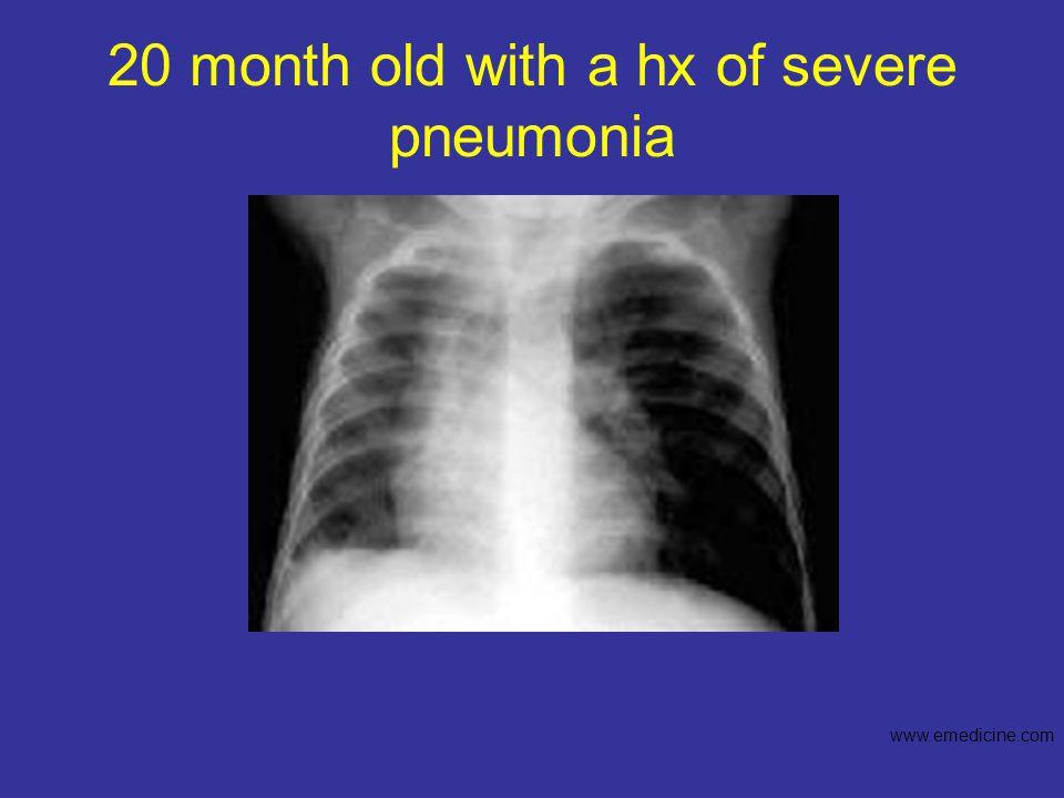 20 month old with a hx of severe pneumonia www.emedicine.com