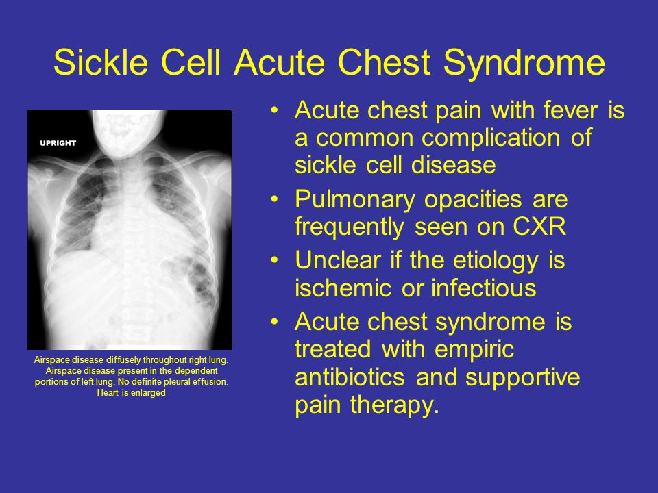 Sickle Cell Acute Chest Syndrome Acute chest pain with fever is a common complication of sickle cell disease Pulmonary opacities are frequently seen on CXR Unclear if the etiology is ischemic or infectious Acute chest syndrome is treated with empiric antibiotics and supportive pain therapy.