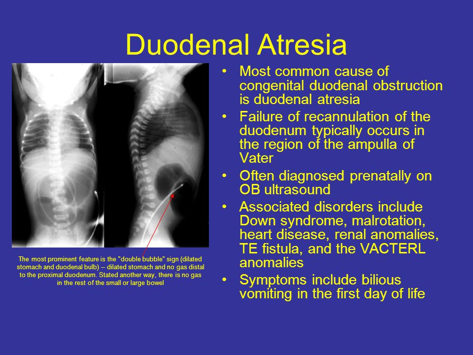 Duodenal Atresia Most common cause of congenital duodenal obstruction is duodenal atresia Failure of recannulation of the duodenum typically occurs in the region of the ampulla of Vater Often diagnosed prenatally on OB ultrasound Associated disorders include Down syndrome, malrotation, heart disease, renal anomalies, TE fistula, and the VACTERL anomalies Symptoms include bilious vomiting in the first day of life The most prominent feature is the double bubble sign (dilated stomach and duodenal bulb) -- dilated stomach and no gas distal to the proximal duodenum.