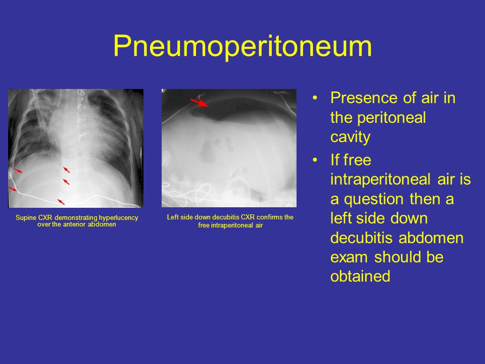 Pneumoperitoneum Presence of air in the peritoneal cavity If free intraperitoneal air is a question then a left side down decubitis abdomen exam should be obtained Supine CXR demonstrating hyperlucency over the anterior abdomen Left side down decubitis CXR confirms the free intraperitoneal air