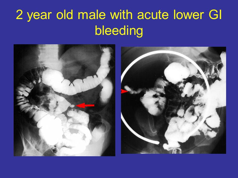 2 year old male with acute lower GI bleeding
