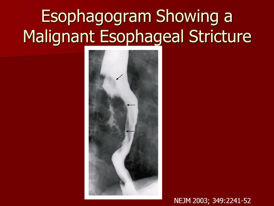 Esophagogram Showing a Malignant Esophageal Stricture NEJM 2003; 349:2241-52