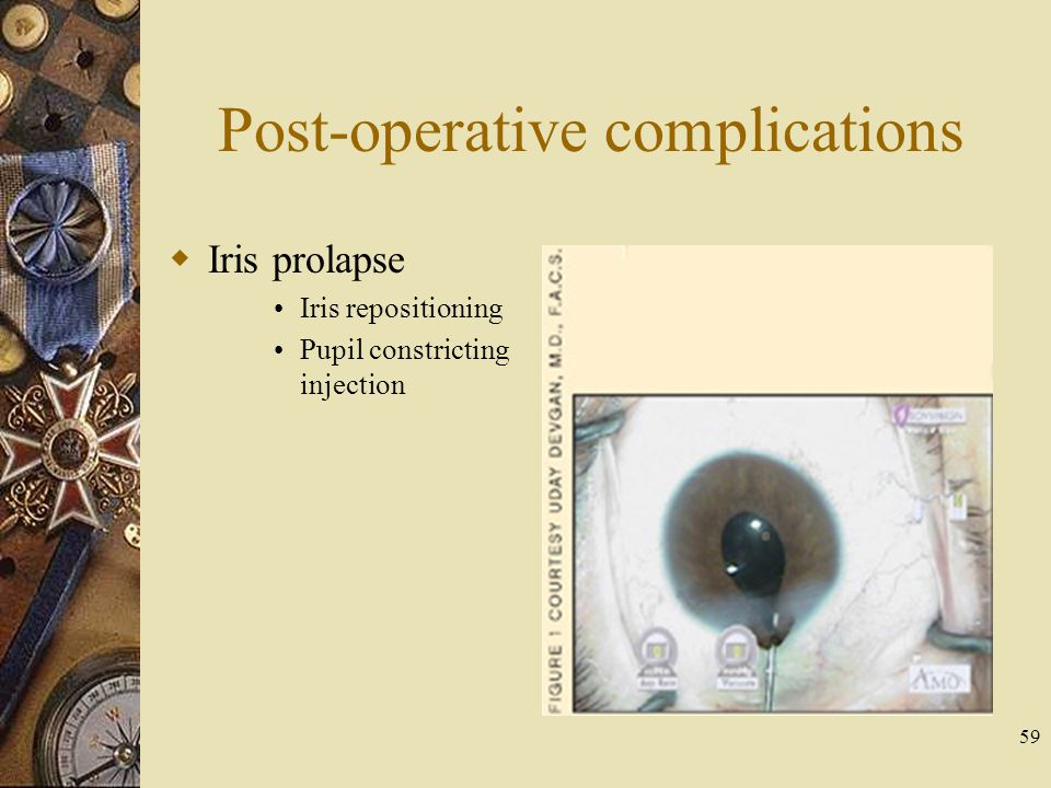 Post-operative complications Iris prolapse Iris repositioning Pupil constricting injection 59